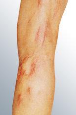 pernas1