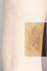 pernas2