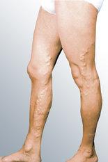 pernas3